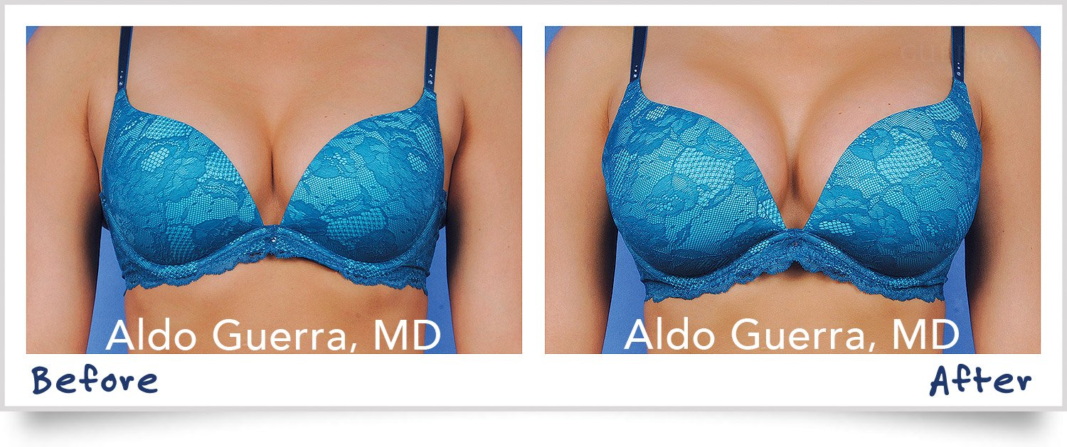 Actual breast augmentation patient before and after photo