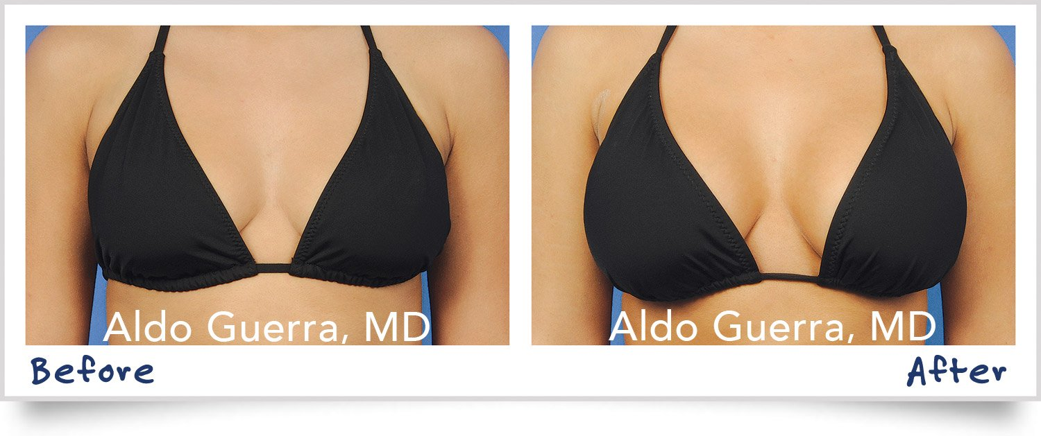 Actual breast lift patient before and after photo
